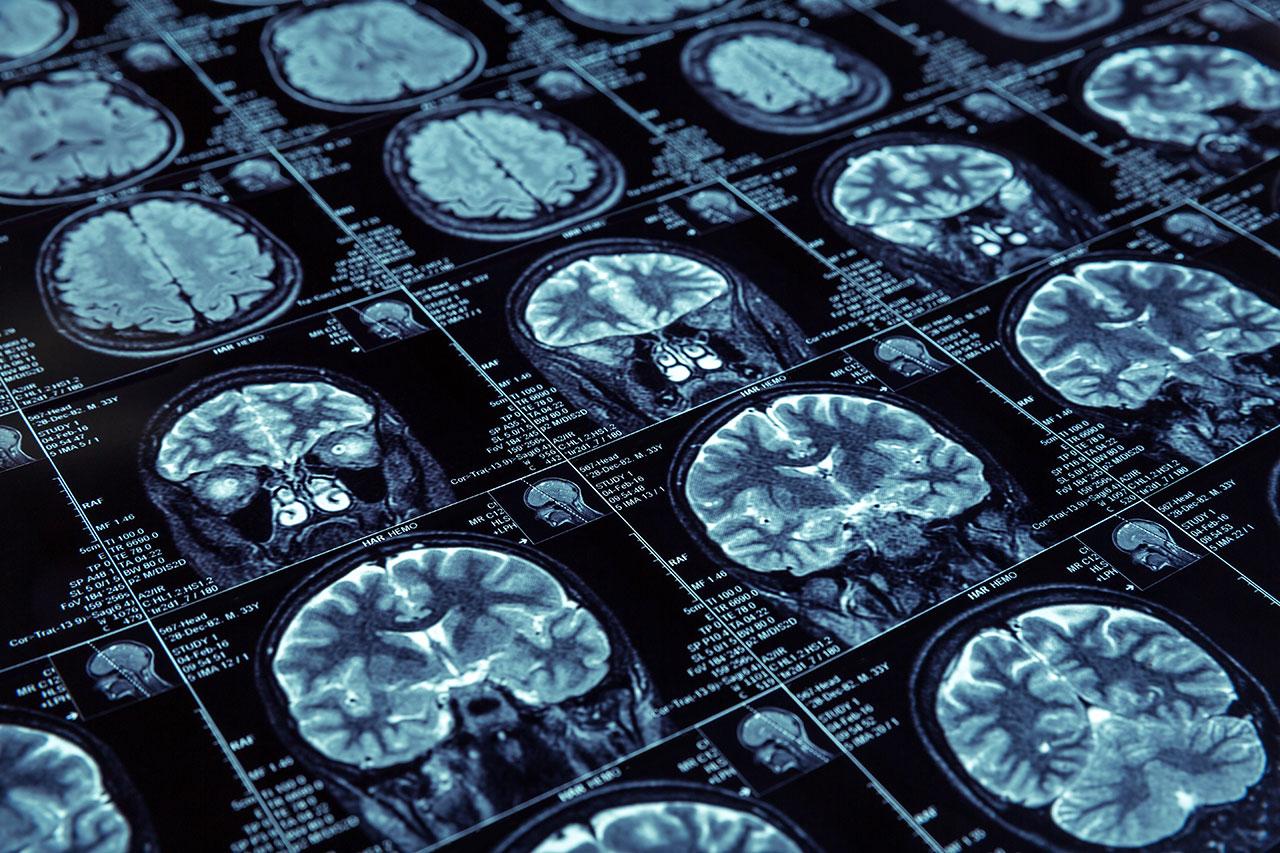 clarity health mri scan drug abuse